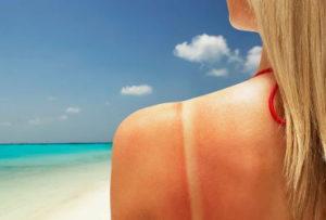 Солнечные ожоги могут приводить к неврозам
